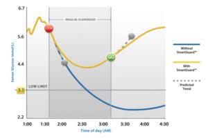 SmartGuard - prediktivno isključivanje inzulina