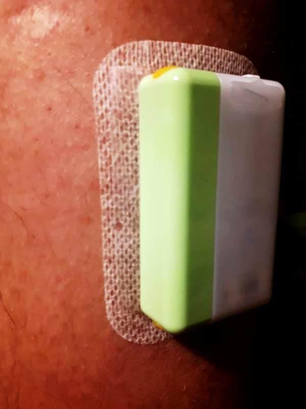 Lijevi zeleni dio je transmiter koji NE bacate u smeće, to pojeftinjuje cijenu cijelog sustava!