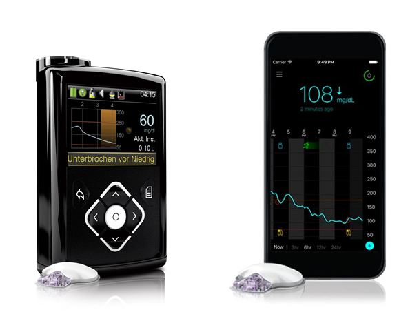Medtronic 640G inzulinska pumpa i samostalni Guardian rtCGMS