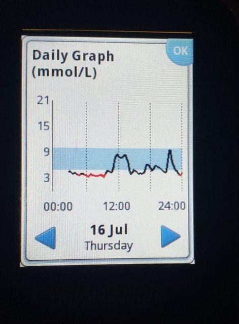 Rano jutarnja hipoglikemija sa uobičajenim bazalima što upućuje na to da rezistencije na inzulin zbog sveprisutnog virusa - nema.