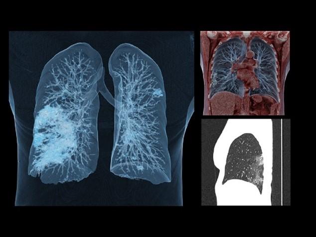 KOVID pluća